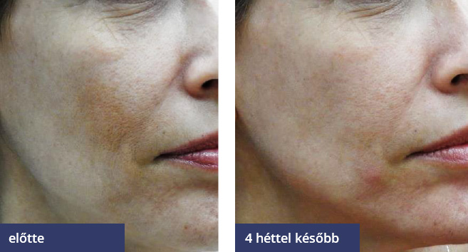 pigmentfolt kezelés Debrecen