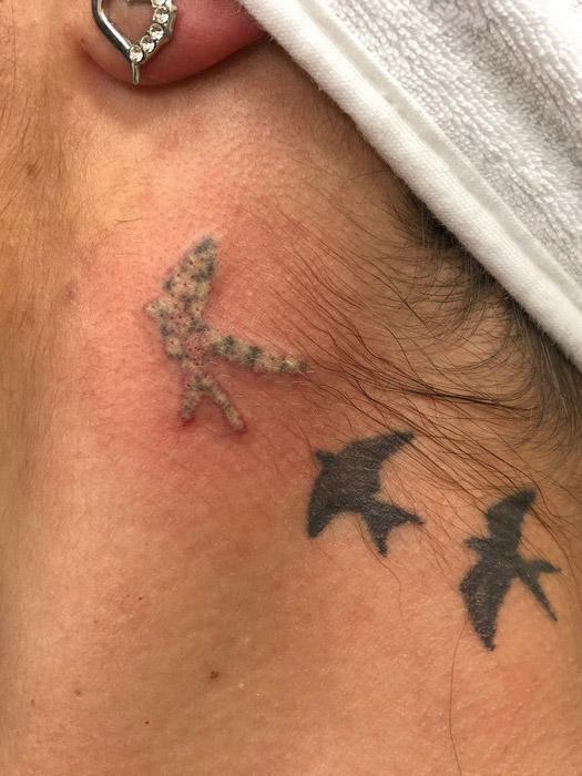 lézeres tetoválás eltávolítás 1. kezelés után