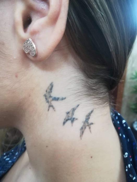 lézeres tetoválás eltávolítás 2. kezelés előtt