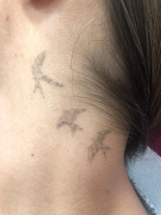 lézeres tetoválás eltávolítás 3. kezelés előtt