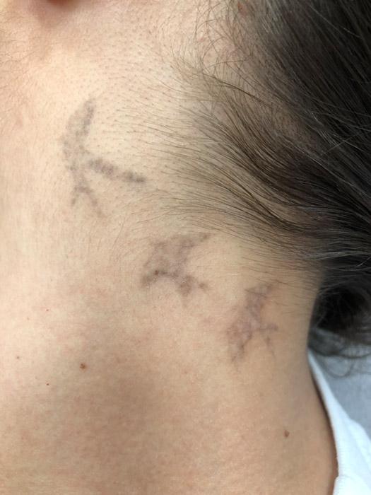 lézeres tetoválás eltávolítás 4. kezelés előtt