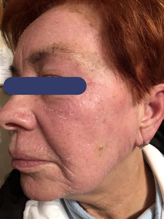 lézeres hámlasztás 1 héttel a kezelés után