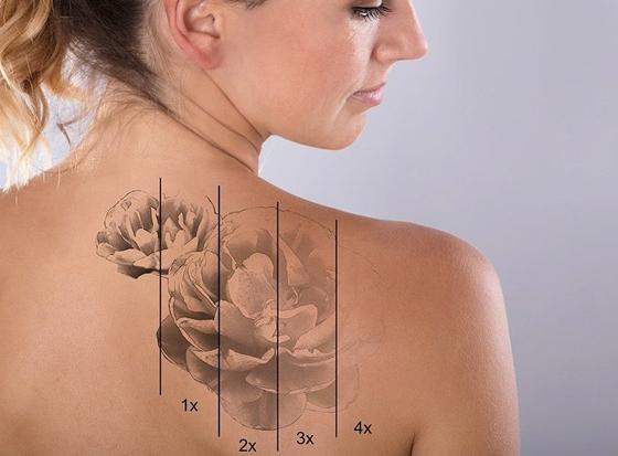 lézeres tetoválás eltávolítás Debrecen